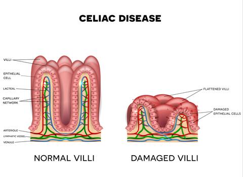 What Is Celiac Disease - Damaged vs healthy villi