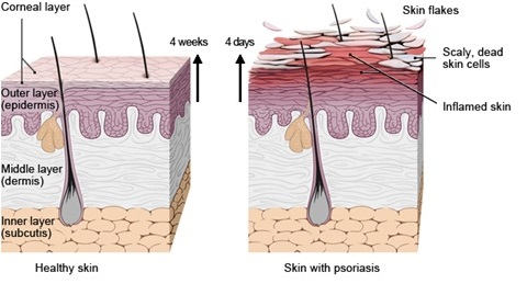 fig 1 healthy vs abnormal skin cell