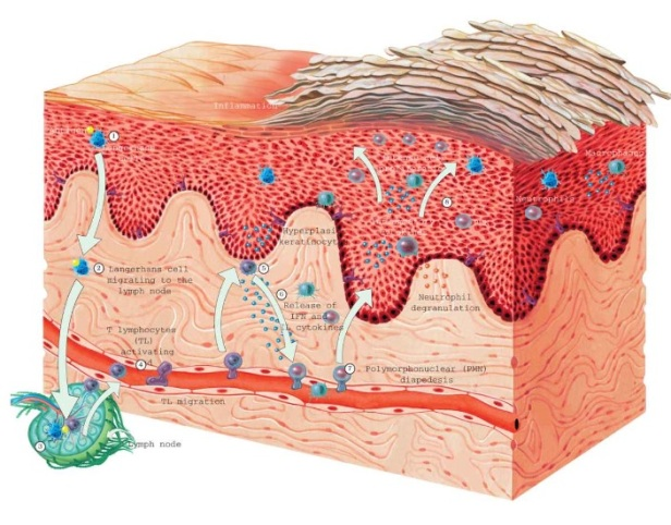 fig 3 pathophysiology of psoriasis