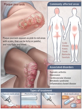 fig 5 patho psoriasis